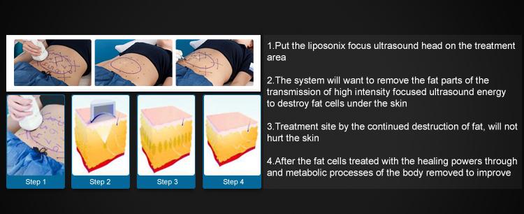 Lipo Sonix High Intesnsity Focused Ultrasound Hifu